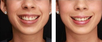 Gummy Smile Treated with Botox before 1083343