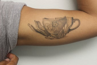 Picosure laser tattoo removal after one treatment photo for Picosure tattoo removal maryland