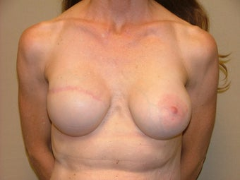 Breast Reconstruction after 735387