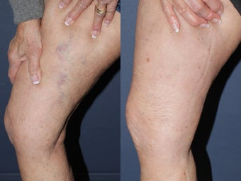 Sclerotherapy before 590816
