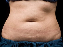 CoolSculpting Procedure with Zeltiq Machine before 218800