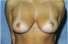 Mastopexy (breastlift) front view after 83399