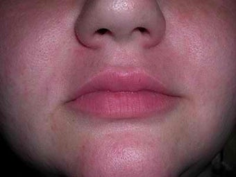 Female Treated with Cosmetic Filler after 1010868