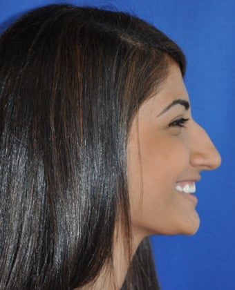 Teenage Rhinoplasty Before and Afters  before 782420