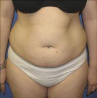 Tumescent Liposuction before 73798