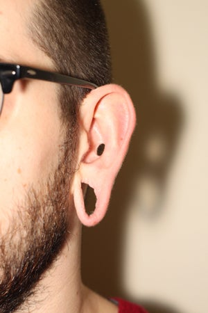 Repairing stretched earlobes and ears damaged by piercing 909040