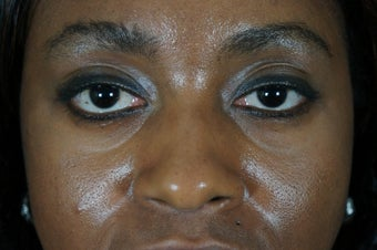 27 year old treated with filler to improve the bags underneath her eyes before 782164