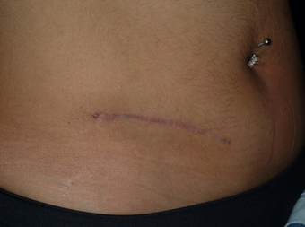 Scar revision of appendectomy scar after 335023