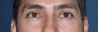Before & After Restylane Injections after 966205