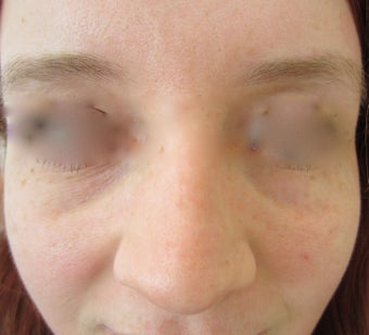 22 year-old female treated with Restylane filler for Tear Trough before 989346