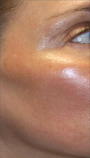 Fraxel - Melasma after 652325