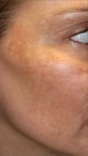 Fraxel - Melasma before 652325