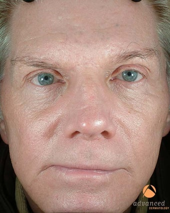 Male Patient Treated with BOTOX® Cosmetic, Perlane® & Sculptra® after 1047014