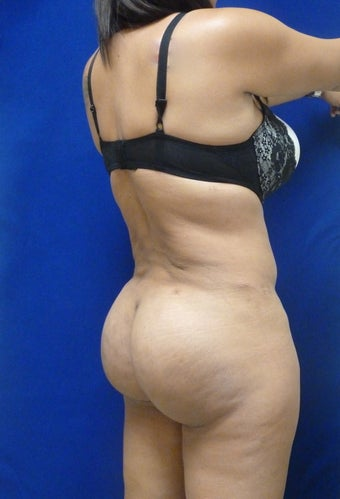 Brazilian Butt lift 724471