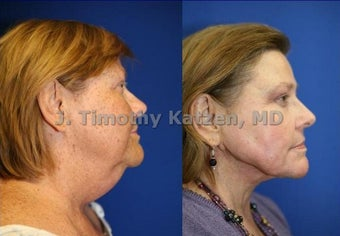 Chemical Peel and Neck liposuction before 667237