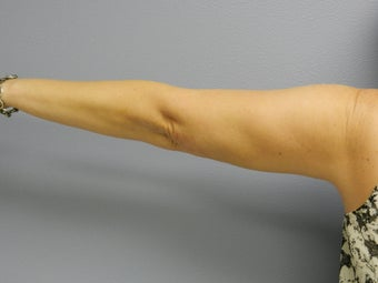 Before Laser Lipo / Arms 382290