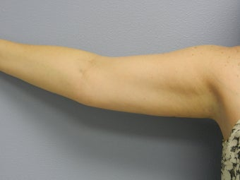 Before Laser Lipo / Arms after 382290