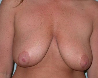 Breast Lift Procedure for 38 Year Old Woman  before 876610