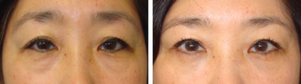 Asian Female Blepharoplasty before 1148215