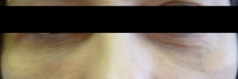 Before and after Restylane to the Tear Troughs  after 1143418
