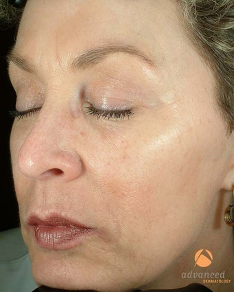 Patient Treated with BOTOX® Cosmetic & Restylane® after 1047011