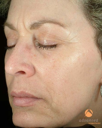 Patient Treated with BOTOX® Cosmetic & Restylane® before 1047011