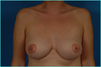 Flap-based breast reconstruction - LDMF after 867532