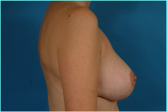 Flap-based breast reconstruction - LDMF 867532