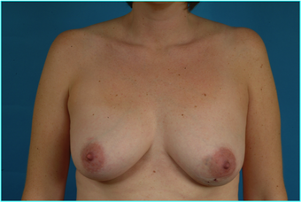 Flap-based breast reconstruction - LDMF before 867532
