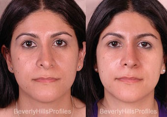 Revision Rhinoplasty before 681871
