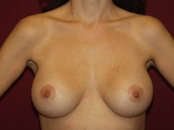 Lift with Breast Implants after 722740