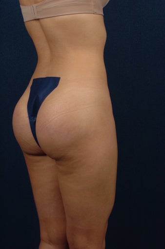 20 Year Old Female - Gluteal Augmentation after 362445