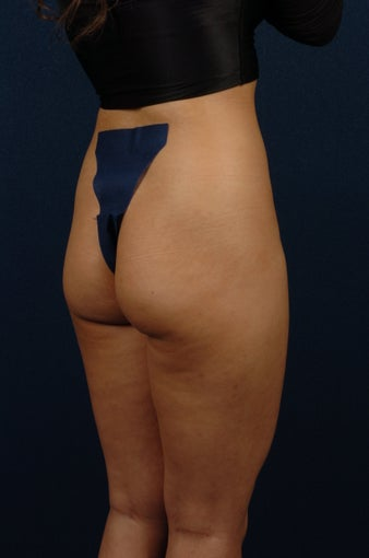 20 Year Old Female - Gluteal Augmentation before 362445
