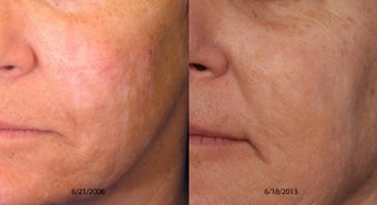 Scar Treatment Before and After before 1039844