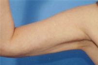 Arm Liposuction after 652128