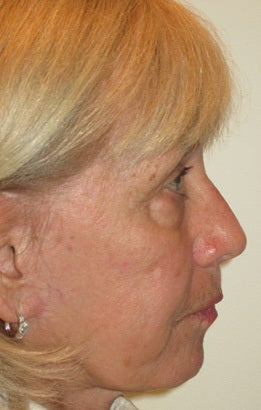 Upper and lower lid blepharoplasty, chemical peel to lower lids before 875969