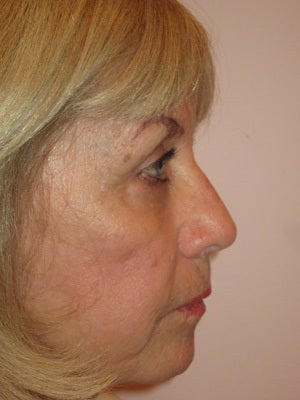 Upper and lower lid blepharoplasty, chemical peel to lower lids after 875969