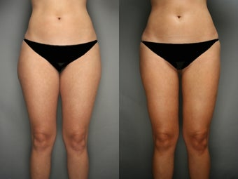 SmartLipo Liposuction of Thighs before 277370