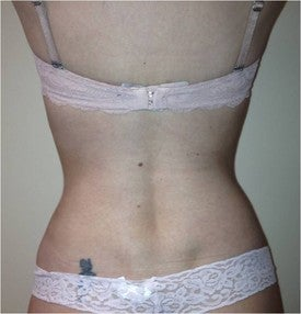 Laser Liposuction after 561154