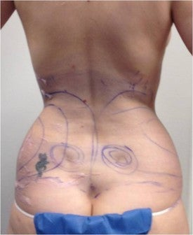 Laser Liposuction before 561154