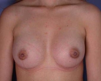 Breast Augmentation after 281383