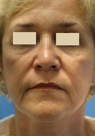 Artefill for NasoLabial Folds before 109217