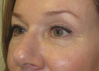 46 year old with eyelid bags undergoing filler treatment after 811417