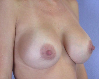 Breast Implant Correction after 281302