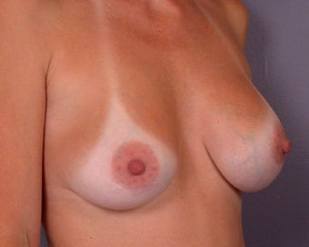Breast Implant Correction before 281302