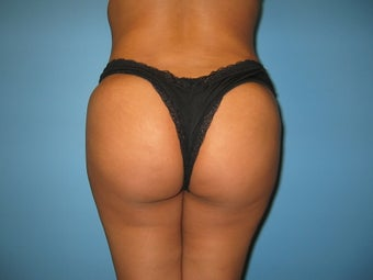 Buttock augmentation (Brazilian buttock lift) after 150356