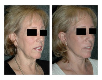 Lower Facelift for Extra Skin and Turkey Neck after 928102