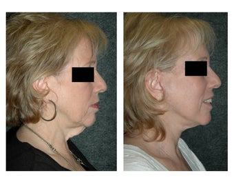 Lower Facelift for Extra Skin and Turkey Neck before 928102