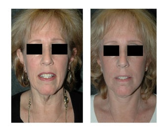 Lower Facelift for Extra Skin and Turkey Neck 928102