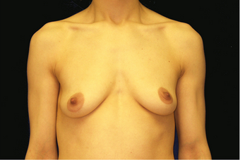 breast augmentation and mastopexy before 391312